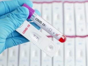 Lettre du Maire / Covid-19 : Tests de dépistage chaque matin dans votre Ville. 4